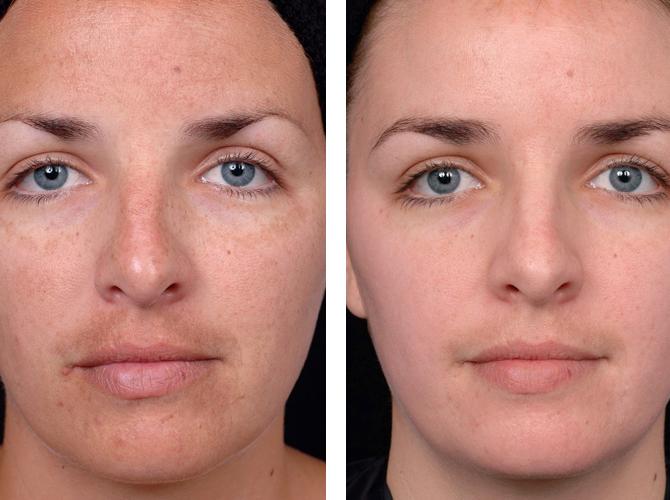 La maschera da posti di pigmentary nota su una faccia
